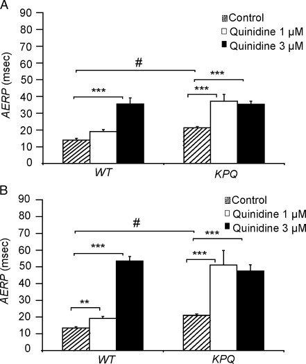 Effect of quinidine on mean AERP in WT and KPQ hearts. AERPs observed during 8 Hz (A) and 10 Hz (B) PES before (dashed bars) and after addition of 1 μM quinidine (open bars) and 3 μM quinidine (black bars) to WT and KPQ hearts. The results of one-way ANOVA for correlated samples are shown (***P < 0.0001, **P < 0.001) and compare AERP between control and 1 μM quinidine and control and 3 μM quinidine for KPQ and WT groups, respectively. The results comparing control AERP between WT and KPQ groups are also shown (#P < 0.0001)