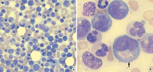(A) Smear of marrow aspirate showing increased numbers of granulocytes at all stages of development and blasts (Wright-Giemsa stain, ×400). (B) Smear of marrow aspirate showing hypogranular myelocytes (arrow) (Wright-Giemsa stain, ×1,000).