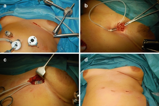 a Infra-mammary incision facilitating the AP place. b Tunnelling of the tube in order to reduce wear and tear of the tube. c Placement of the AP device on the pectoral fascia. d Cosmetic result at termination of the LAGB procedure