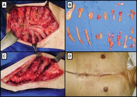 A) Bilateral infection in the 3rd to 8th costal cartilages and ribs. B) 3rd to 8th bilateral costal cartilage removal. C) Second bilateral debridement of the 6th ribs on the 4th post-operative day. D) Final apperance of the wound with insertion of a Portovac® tube.