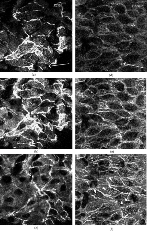 Localization of tyrosine-phosphorylated proteins and vinculin in the renal arterial endothelial cells. En face preparations were stained with antiphosphotyrosine antibody (PY-20) (a–c) or antivinculin antibody (d–f) and observed by confocal laser scanning microscopy. The focal plane was adjusted to the surface (a and d), middle (b and e), or basal (c and f) portion of the endothelial cells. Tyrosine-phosphorylated proteins were observed along the apical plasma membrane in uniform staining (a). Strong staining for tyrosine-phosphorylated proteins was detected at sites of cell-to-cell apposition (b), with faint staining in the cytoplasm (c). Antivinculin staining was detected at sites of cell-to-cell apposition (e) and focal adhesion in the basal portion of the cells (f: arrowheads). No staining for vinculin was detected at the apical surface of the cells (d). The arrow indicates the direction of blood flow. Bar: 50 μm.