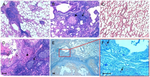 Inflammatory lesion patterns and PrPSc deposition in ovine lungs.Micrographs show the inflammatory lesions' morphology and PrPSc deposition in lungs from sheep simultaneously affected by scrapie and parasitic bronchopneumonia caused by nematodes. Representative patterns of lymphofollicular (A) and lymphofollicular (arrows) associated with granulomatous (arrowheads) inflammation (B and D). A histologically normal ovine lung is also shown (C). PrPSc deposits (arrows) are visible within newly formed lymphoid follicles adjacent to granulomatous lesions (E and F). Micrograph F is a higher magnification of the red line-enclosed area shown in micrograph E. Hematoxylin-eosin (H&E) stain (A, B, C, and D); PrPSc immunohistochemistry (IHC) with F99 as primary antibody and Mayer's hematoxylin counterstain (E and F). Scale bar = 100 µm.