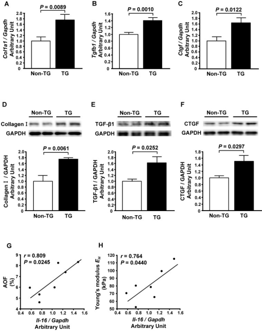 Effect of enhanced cardiac expression of interleukin-16 (IL-16) on markers of cardiac fibrosis in mice.A through C, Left ventricular mRNA levels of Collagen I (A), transforming growth factor-beta 1 (TGF-β1) (B) and connective tissue growth factor (CTGF) (C) in non-transgenic (Non-TG) and transgenic (TG) mice. D through F, Left ventricular protein levels of Collagen I (D), TGF-β1 (E) and CTGF (F) in Non-TG and TG mice. Top panels in each figure show a representative Western blot. n = 5 per group. G and H, Correlations of IL-16 mRNA levels with AOF (G) and Young's modulus EH (H) in TG mice.