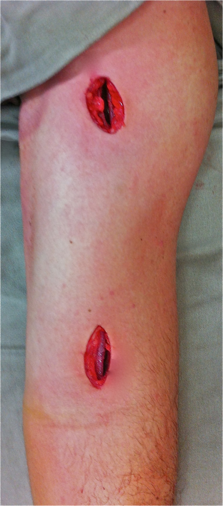 Surgical incisions for minimally invasive bridge plate osteosynthesis.