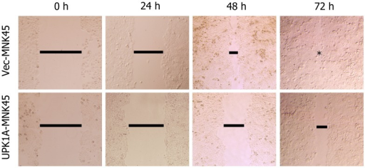 In the wound healing assay, representative images were photographed 0, 24, 48 and 72 hours after scratching.The result demonstrated that the high expression of UPK1A inhibited the cell motility.