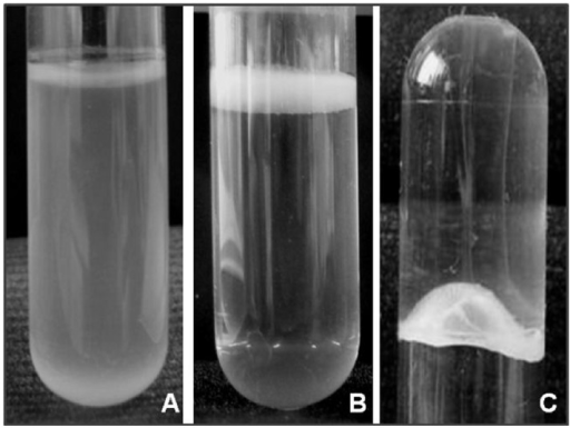 Biofilm formation by A. baumannii.A) Strain negative for pellicle formation (turbid culture); B) Strain forming a pellicle on the top of the liquid media (culture broth transparent); C) Inverted tube to examine pellicle strength.