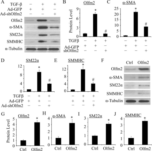 Olfm2 was required for TGF-β–induced SM differentiation of hES-MCs. (A) Olfm2 knockdown suppressed TGF-β–induced SM differentiation. hES-MCs were transduced with Ad–green fluorescent protein (GFP) or Ad-shOlfm2, followed by vehicle (−) or TGF-β (+; 1 ng/ml) treatment for 48 h. Western blotting was performed to detect Olfm2 and SM marker expression. (B–E) Quantification of the protein expression shown in A. The protein expression was normalized to α-tubulin. *p < 0.01 compared with Ad-GFP–transduced group with vehicle treatment. #p < 0.01 compared with Ad-GFP–transduced group with TGF-β treatment (n = 3). (F) Olfm2 expression induced SM differentiation. hES-MCs were transfected with control or Olfm2 plasmid, followed by serum starvation for 24 h. Cell lysates were collected for Western blot analysis of the proteins indicated. (G–J) Quantification of the protein expression shown in F by normalizing to α-tubulin. *p < 0.01 compared with control plasmid–transfected group (n = 3).