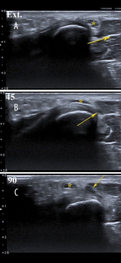 Dislocation of the ulnar nerve (*) and an additional muscle band (arrow) over the medial epicondyle. (A) extended arm, (B) 45-degree flexion, (C) 90-degree flexion.
