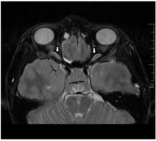 Magnetic resonance imaging. Contrast-enhanced axial T2-weighted MRI scan shows cerebrospinal fluid tracking along the optic nerve sheath.