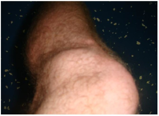 Visible mass on lateral joint line on the knee.