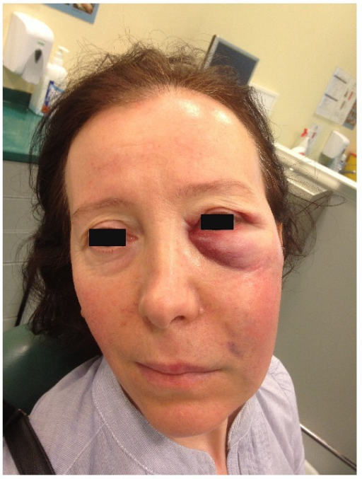 Infraorbital ecchymosis and slight bruising near the nasolabial fold.