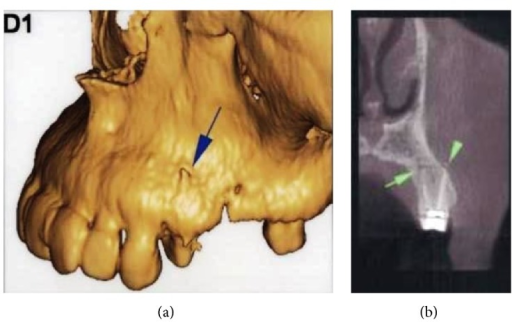 (a) 3D image and (b) coronal view of DVT revealed that the apex of the buccal root canal had perforated the maxillary cortical bone.