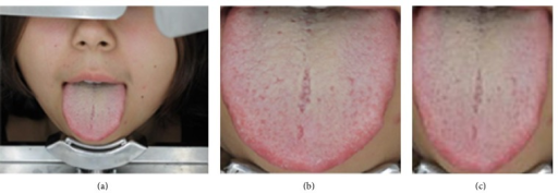 Image processing procedure. (a) Original image acquired by the tongue analyzer. (b) Rectangular area containing the tongue segmented from the original image. (c) Final image scaled to 120 × 100 pixels.