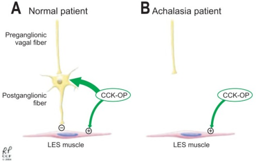 Both lower esophageal sphincter (LES) smooth muscle and the inhibitory neurons of the myenteric plexus have cholecystokinin receptors. (A) In a normal esophagus, administration of cholecystokinin-octapeptide (CCK-OP) results in LES relaxation because the inhibitory neurons override the direct excitation of the LES smooth muscle. (B) However, in achalasia, the LES smooth muscle excitation is unopposed due to the loss of the inhibitory neurons in the myenteric plexus. As a result, CCK-OP causes LES contraction.