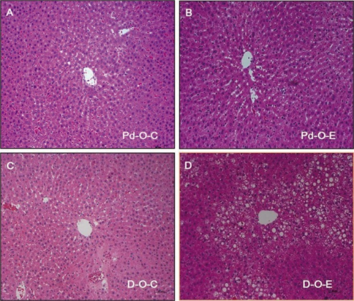 Effect of alcohol on liver tissue. (A) Liver section from an OLETF rat fed control diet from 11 to 16 weeks of age (prediabetes). (B) Liver section from an OLETF rat fed a Lieber-DeCarli ethanol diet from 11 to 16 weeks of age. (C) Liver section from an OLETF rat fed a control diet from 17 to 22 weeks of age (diabetes). (D) Liver section from an OLETF rat fed a Lieber-DeCarli ethanol diet from 17 to 22 weeks of age. OLETF, Otsuka Long-Evans Tokushima Fatty; Pd-O-C, prediabetes/OLETF rat/control diet; Pd-O-E, prediabetes/OLETF rat/ethanol diet; D-O-C, early diabetes/OLETF rat/control diet; D-O-E, early diabetes/OLETF rat/ethanol diet (×200, H&E stain).