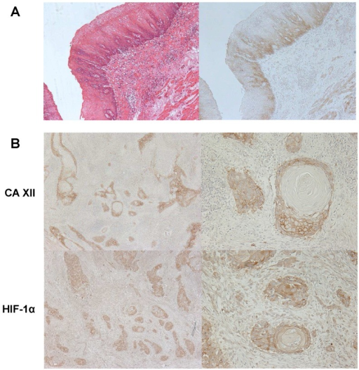 A: Immunohistochemical staining of human esophageal precancerous tissue with the CA XII antibody. CA XII protein expression was found in esophageal dysplasia. Magnification: ×100. B: The comparison between CA XII and HIF-1α protein expressions in human ESCC tissues. Immunohistochemical staining patterns of CA XII (high) and HIF-1α (low) were similar. Magnification: ×40 (left), ×200 (right).