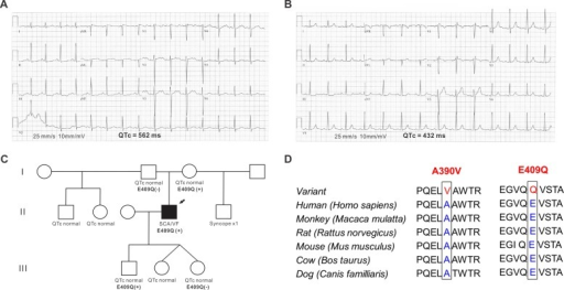 A drug-induced long-QT syndrome patient with the p.E409Q variant in SNTA1.(A) A 12-lead resting electrocardiogram (ECG) from the proband during the post-arrest period showed markedly prolonged QT intervals. The QTc was 562 ms, and the notched T wave was noted. (B) The QTc interval was normalized and the T wave notch disappeared 2 months after aborted sudden cardiac death. (C) Pedigree of the family. An arrow is the proband with p.E409 variant. (D) Sequence conservation across species for A390V and E409Q versus normal in SNTA1. SCA, sudden cardiac arrest; and VF, ventricular fibrillation.