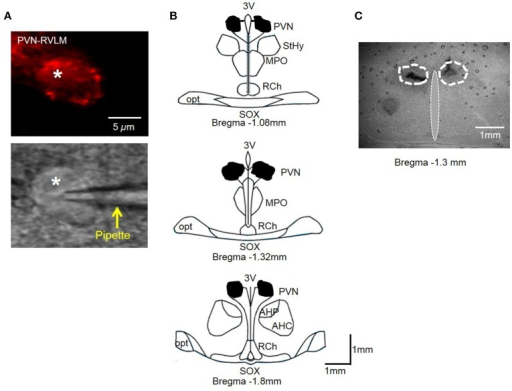 (A) PVN-RVLM neuron with red fluorescence from retrograde label (top) and same neuron with patch pipette positioned on cell surface with DIC microscopy (bottom). (B) Schematic drawings of coronal sections throughout the rat hypothalamus. Shaded area indicates spread of injected dye used to mark the injection sites in the bilateral PVN. The shape of each area was determined by overlaying tracings of the outermost diffusion area of injected dye (100 nl) through the rostral-caudal plane of the PVN. (C) Representative coronal slice through the PVN demonstrating spread of injected dye. AH, anterior hypothalamic area; 3V, third cerebral ventricle; RCh, retrochiasmatic area; MPO, medial preoptic nucleus; opt, optic tract; SOX, supraopticdecussation; StHy, striohypothalamic nucleus.