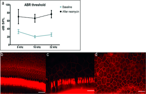 ABR thresholds and histologic changes after unilateral neomycin deafening.(a) There was statistically significant elevation of thresholds overall (MANOVA, p < 0.01) and at each tested frequency (p < 0.05). Epi-fluorescence of auditory epithelium stained by phalloidin (actin, red) showed diverse tissue morphologies: scar formation (b), transition from scar formation to flat epithelium (c) or flat epithelium (d), but always complete hair cell loss. Scale bars are 25 μm.