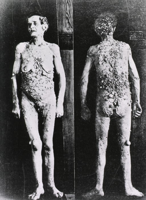 <p>Front and back views of a person standing full length.</p>