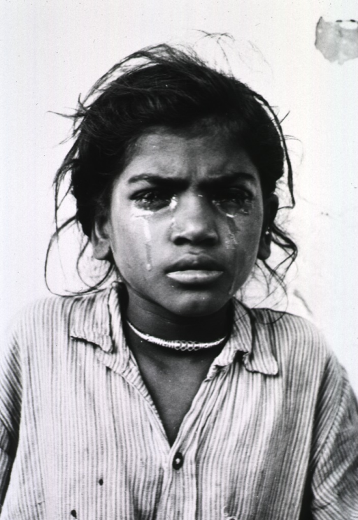 <p>Head and shoulders of a young girl with watery eyes and tears streaming down her cheeks.</p>