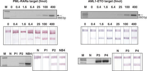 Dipstick test for the detection of PML-RARa (left panel) and AML1-ETO (right panel) transcripts. The target DNA was diluted in PCR buffer (67 mM Tris-HCl, pH 8.8, 16.6 mM (NH4)2SO4 and 0.1 ml/l Tween-20). The results obtained by agarose (2%) gel electrophoresis and ethidium bromide staining are also presented for direct comparison. N = RT negative (water instead of RNA in the RT mixture); P1 = patient negative for the PML-RARa translocation; P2 = patient positive for the PML-RARa translocation; P3 and P4 = patients positive for the AML1-ETO translocation. NB4 = RNA from NB4 cell line, that carries the PML-RARa translocation.