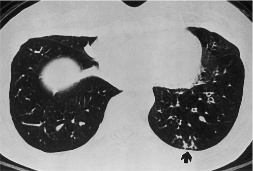 Tree-in-buds of bronchiolitis obliterans in a 28-year-old woman. Bronchiolitis obliterans was diagnosed on spirometry and transbronchial lung biopsy 16 months after bone marrow transplantation for chronic myelocytic leukemia. Inspiratory high resolution computed tomography scan shows decreased lung attenuation and subsegmental bronchial dilatations in left lower lobe. Tree-in-bud pattern is noted in subpleural portion of posterior basal segment of left lower lobe (arrow).