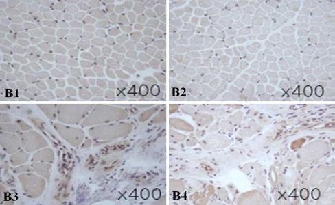 Immunohistochemistry of TLR4 in muscle tissues of patients with DM, PM, and controls. In the muscle tissues of DM, TLR4 was expressed by infiltrating cells in the perimysial area (B3), whereas in PM, TLR4 was expressed by infiltrating cells in the endomysium (B4). Control muscle tissues were obtained from patients with non-specific muscle manifestations but with normal histological findings (B1, 2). Magnification was ×400