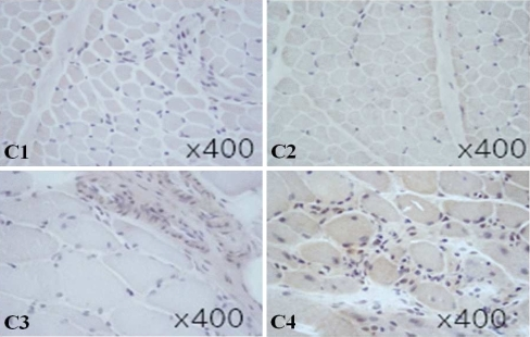 Immunohistochemistry of TLR9 in muscle tissues of patients with DM, PM, and controls. In the muscle tissues of DM, TLR9 was weakly expressed by infiltrating cells in the perimysial area (C3), whereas in PM, TLR9 was expressed by infiltrating cells in the endomysium (C4). Control muscle tissues were obtained from patients with non-specific muscle manifestations but with normal histological findings (C1, 2). Magnification was ×400