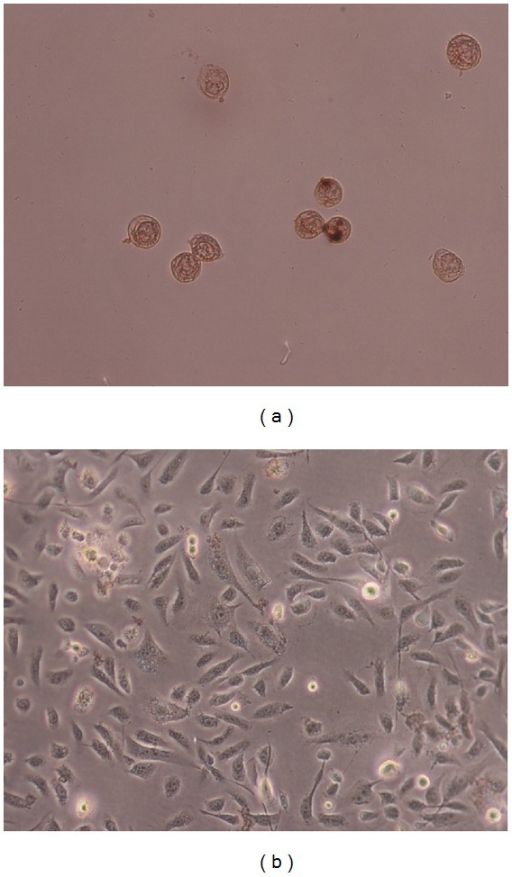 Nuclei morphological changes during Punica granatum spinosa induced apoptosis in PC3 cells detected by TUNEL assay. Tumor cells treated with extract (250 μg/mL) were assayed by TUNEL and observed under light microscopy. For PC3 cells group, (a) treated with extract (250 μg) for 24 h and (b) show negative control (without treatment).