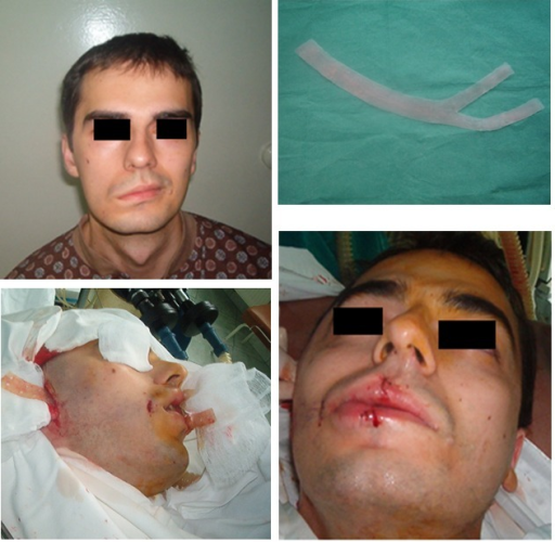 G.B., 26 years old, with facial asymmetry after right acoustic neuromata surgery, 2 cm silicone grade band was made, introduced and fixed under temporal and lips orbicular muscle with good aesthetical results after 6 months.