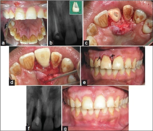 Clinical photograph and radiograph of case 2. (a) Pre operative photograph, (b) Post obturation radiograph, (c) Palatal envelope flap raised, (d) Post and fractured fragment luted, (e) Sutures given, (f) Post cementation radiograph, (g) At 6 months follow-up