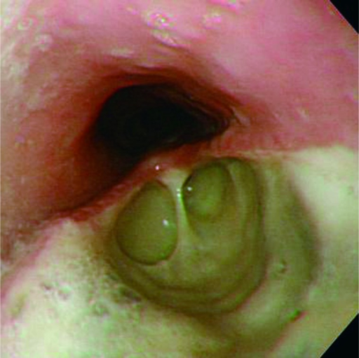 Esophageal findings on day 9. There were two major fistulas on the left side of theesophagus, 15 and 20 centimeters, respectively, from an incisor (figure correspondingto the upper sides of the fistulas).