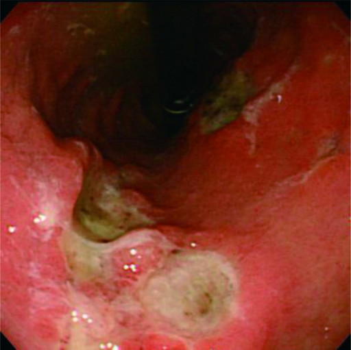 Gastric findings on day 9. Three ulcers located on posterior wall of body andanterior and posterior walls of the greater curvature of the stomach showed nopetechial hemorrhage and no erosion circumferentially.