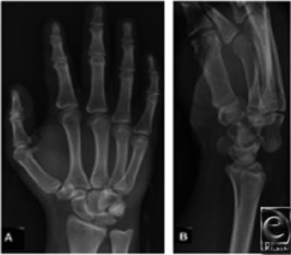 Radiograph demonstration of a perilunate dislocation: The lunate maintains its normal articulation with the radius, whereas the capitated articular surface is dislocated from the lunate dorsally.