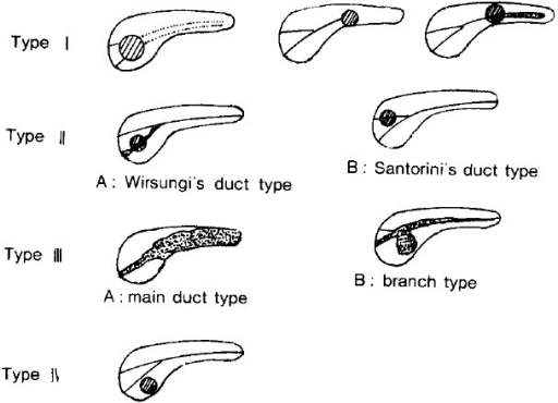 Takaki's classification of pancreatic duct findings in pancreatic cancer (1982)
