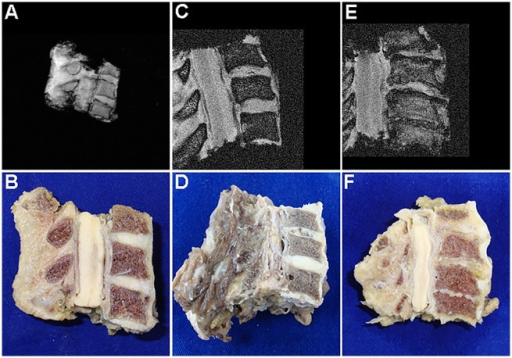 MR and corresponding mid-sagittal views of cervical vertebral blocks.G1 specimen with only incipient degenerative findings is demonstrated in A and B. Advanced degeneration was manifested in G1 primarily through horizontal tears such as seen in the C4-5 disc of this another G1 specimen (C and D). Complete disc collapse was present in over 50% of G2 specimens as seen here (E and F). The C3-4 disc was included in this last specimen but not graded.