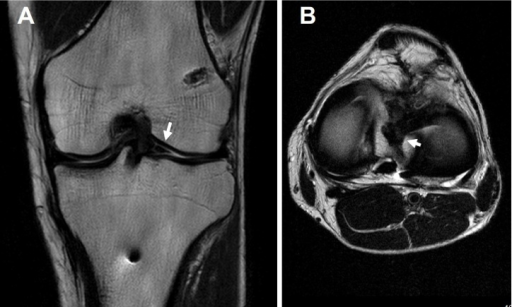 MR images before second-look arthroscopy.(A) A newly-developed bridging tissue (arrow).(B) The bridging fiber formed a ring-shaped lateral meniscus (arrow).