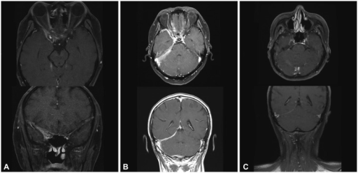 Gadolinium-enhanced T1-weighted axial and coronal views in patient 2. A: Postcontrast T1-weighted MRI showed an ill-defined enhancement along the anterior temporal area, superior orbital fissure, and parapharyngeal space. B: After 7 months of corticosteroid and azathioprine combined treatment, extensive dural thickening and enhancement at the right tentorium and posterior fossa appeared. C: After treatment with rituximab, the 4-month follow-up MRI showed marked decreases in dural thickening and enhancement.
