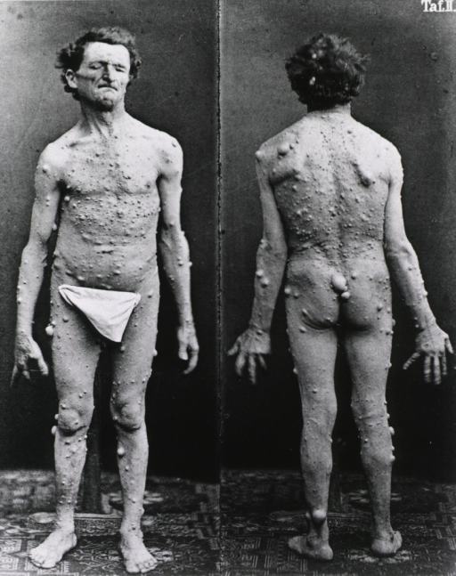 <p>Front and back views of a man standing full length.</p>