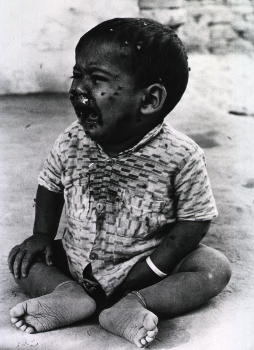 <p>A young child, sitting on the ground, is crying and has many flies on his face.</p>
