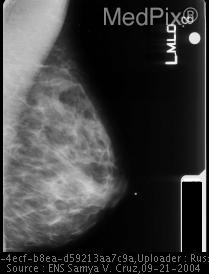 Ductal Carcinoma/MLO Mammo Image