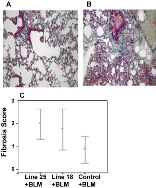 TGFβ1 overexpression induces pronounced fibrotic response following bleomycin exposure. Tissue fibrosis was assessed in both Tr- wild type (A) and Tr+ transgenic (B) mice lung following exposure to 4500 IU bleomycin, as previously described. Shown are representative micrographs following haematoxylin/eosin staining of lung tissue, demonstrating fibrotic response in bleomycin treated wild type mouse lung that is significantly more severe in tissue from Tr+ TGFβ1 transgenic mice, suggesting that overexpression of the TGFβ1 transgene exacerbates subsequent lung injury. C. To quantify this fibrotic effect, fibrosis scores were determined as described. The graph shows enhanced fibrosis scores in Tr+ TGFβ1 transgenic mice versus their Tr- wild type counterparts in response to bleomycin exposure.