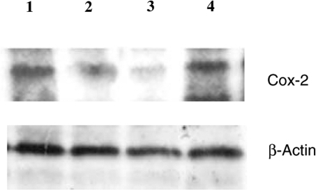 Representative Western blot expression of COX-2 and protein in HEP-2 cells were treated with EPA (pure n-3 PUFA) 100 μg ml−1 and/or irradiated with 5 Gy. The interval for combined treatment was 24 h. All cells were harvested at 48 h treatment. Lane 1: control, lane 2: n-3 PUFAs 100 μg ml−1, lane 3: irradiation with 5 Gy plus n-3 PUFAs 100 μg ml−1, lane 4: 5 Gy irradiation.