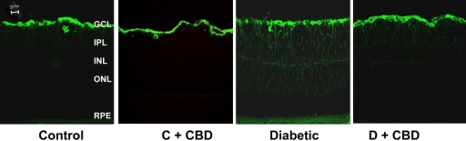 Cannabidiol (CBD) prevents Müller cell activation in diabetic animals. Representative images of glial fibrillary acidic protein (GFAP) showing abundant immunofluorescence at the end-feet of the Müller cells and the radial processes stained intensely throughout both the inner and outer retina in the diabetic retinas compared with normal controls. This effect was blocked by treatment with CBD (10 mg/kg/2days, i.p.). Similar results were obtained from five additional animals per group.