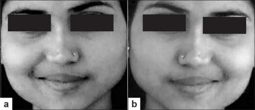 Example of happy-neutral chimeric faces (a) Happy hemi-face in the left and neutral hemi-face in the right hemi-field; (b) Mirror reversed image of A. Happy hemi-face in right and neutral hemi-face in left hemi-field