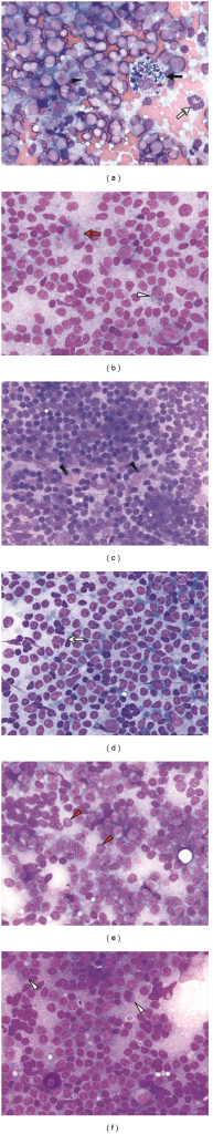 Smears produced from lymph node fine-needle samples and examined at high power. High power assessment shows the differences in cell composition between reactive lymphoid hyperplasia (a) and the cytological features of the neoplastic cells in marginal zone lymphoma (b), follicular lymphoma (c), mantle cell lymphoma (d), chronic lymphocytic leukemia/small lymphocytic lymphoma (e), and lymphoplasmacytic lymphoma (f). Follicular dendritic cells (black arrowheads), tingible body macrophages (black arrow) and mitoses (white arrows) are present within a lymphohistiocytic aggregate seen in reactive lymphoid hyperplasia. Monocytoid B-cells (red arrow) and plasmacytoid cells (white arrowheads) are often found in marginal zone lymphoma. Follicular dendritic cells are a prominent feature of follicle center fragments present in samples of follicular lymphoma. These follicle center fragments do not show the other constituents seen in the lymphohistiocytic aggregates of a reactive lymph node. Mitoses are also a frequent finding in mantle cell lymphoma, but are not commonly seen in the other types of B-cell non-Hodgkin lymphoma illustrated here. Prolymphocytes (red arrowheads) are often found in areas of vague nodularity present in smears of chronic lymphocytic leukemia/small lymphocytic lymphoma and identified by a nucleolus which has a tinctorial quality similar to the cytoplasm of the cell. Plasmacytoid cells and mast cells (f: left lower image quadrant) are constituents seen in lymphoplasmacytic lymphoma. (d: Diff-Quik, all other: May-Grünwald-Giemsa; 63x).