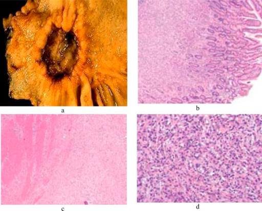 Morphological and cellular illustrations related to gastric cancer. A suspicious stomach ulcer that was diagnosed as cancer on biopsy and resected (a). Tumor cells fill the lamina propria, leaving benign glands largely undisturbed (b). Tumor cells infiltrate the muscularis propria (c). In diffuse-type carcinoma, glandular structures are abortive (d).