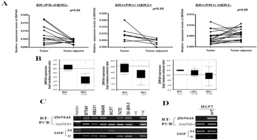 Downregulation of ZNF545 in breast cancer.(A) ZNF545 expression in primary breast tumor tissues and paired surgical margin tissues were evaluated using quantitative RT-PCR analysis. (B) Reduced expression of ZNF545 in breast cancer. Data extracted from cancer microdatabase Oncomine: https://www.oncomine.org/. BN: Normal Breast tissues; IBC: Invasive Breast Carcinoma; LBC: lobular breast carcinoma. (C) ZNF545 expression by semi-quantitative RT-PCR and methylation status of the ZNF545 promoter by MSP in breast cancer cell lines. GAPDH was used as a control. (D) Pharmacological demethylation restores expression of ZNF545 in MCF7 cell treated with Aza combined with TSA (A+T), accompanied by demethylation of the promoter. M, methylated; U, unmethylated.