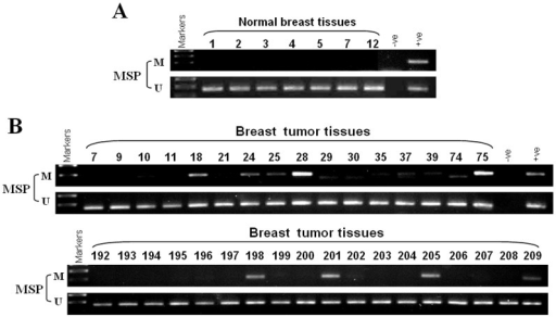 ZNF545 is frequently methylated in primary breast tumors.(A) Methylation of ZNF545 by MSP in normal breast tissues. (B) Representative analysis of methylation of the ZNF545 promoter in breast tumor tissues. M, methylated; U, unmethylated.